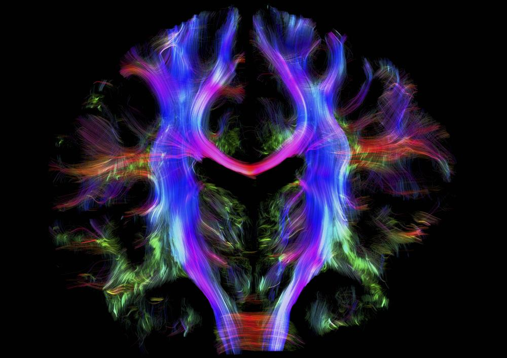 wellcomeimages9. Cerebro sano