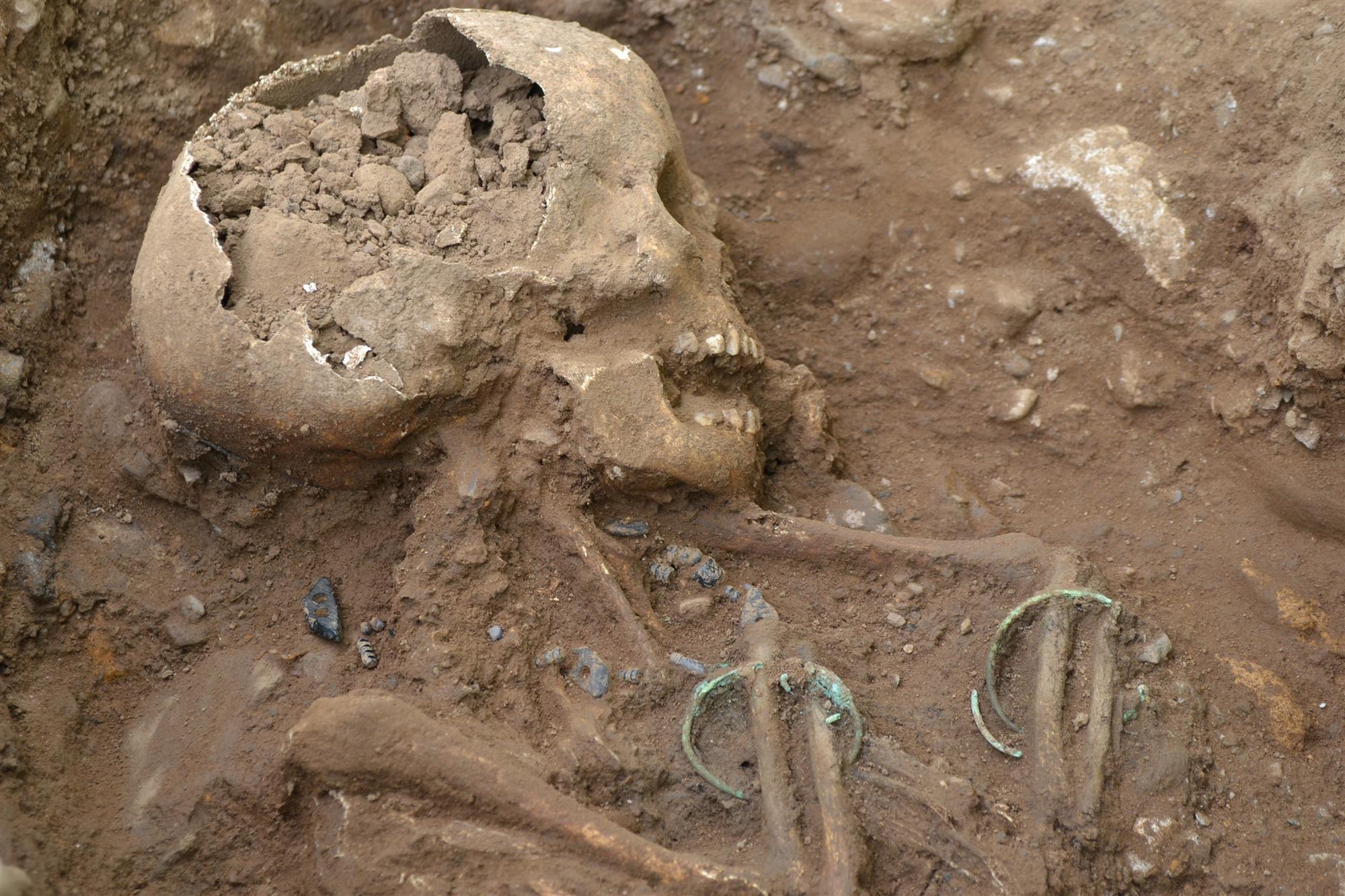 Esqueleto de un niño