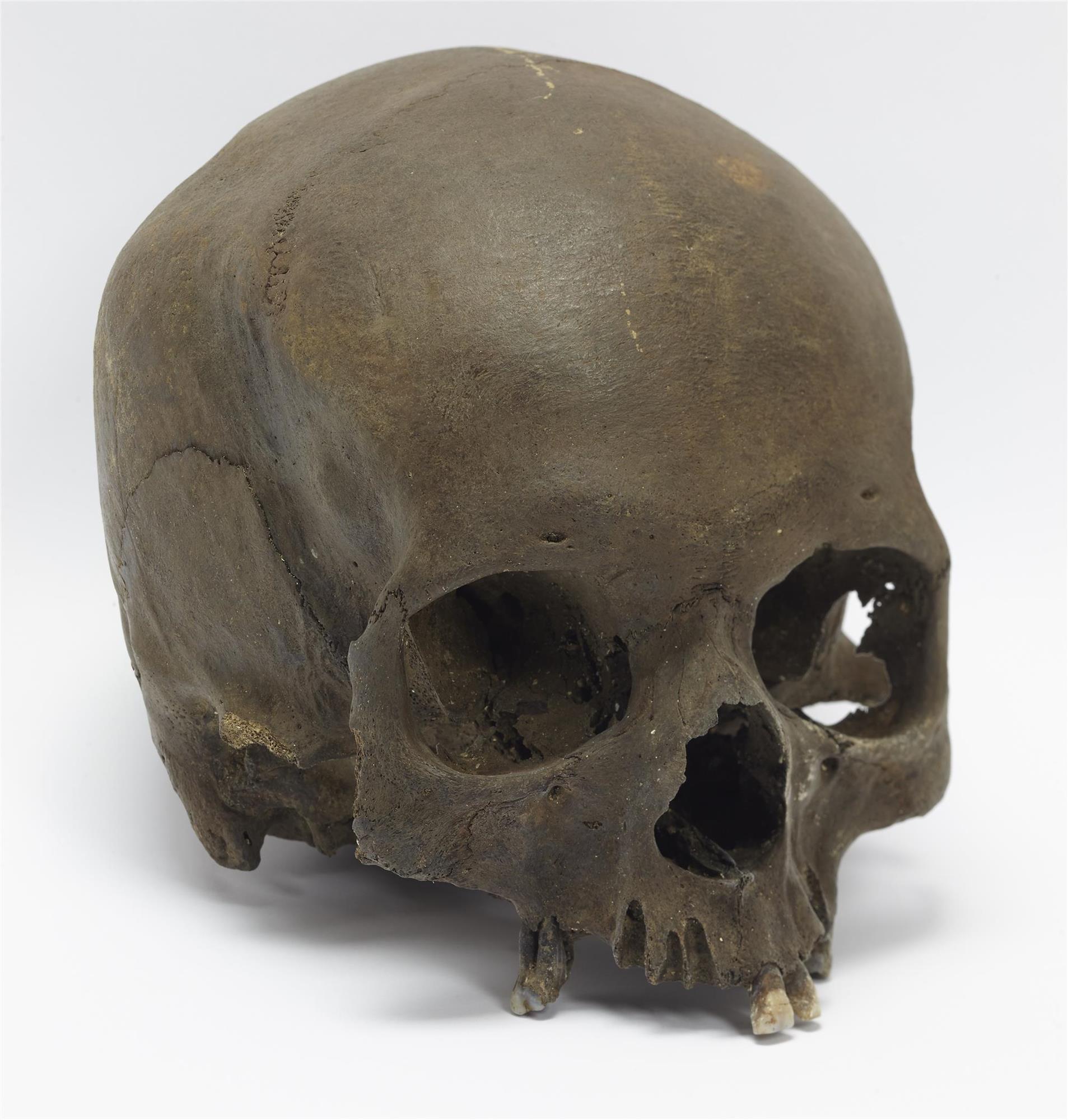 Un paseador de perros encuentra un cráneo de la Edad del Hierro en Inglaterra