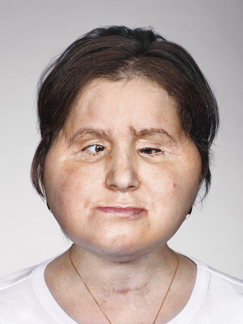 bc9e54bd37 La nueva cara de Katie, un trasplante facial histórico