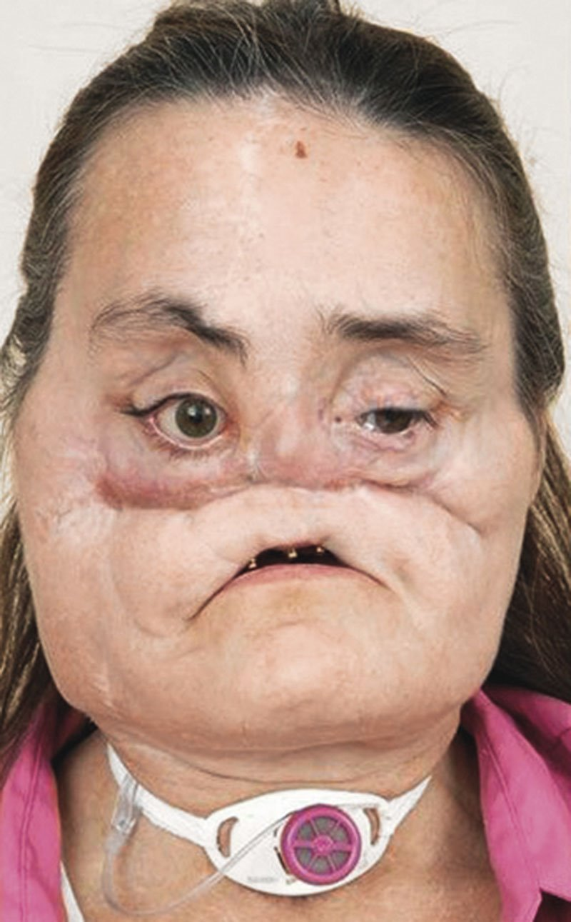 trasplantes faciales el significado de tener un rostro nuevo