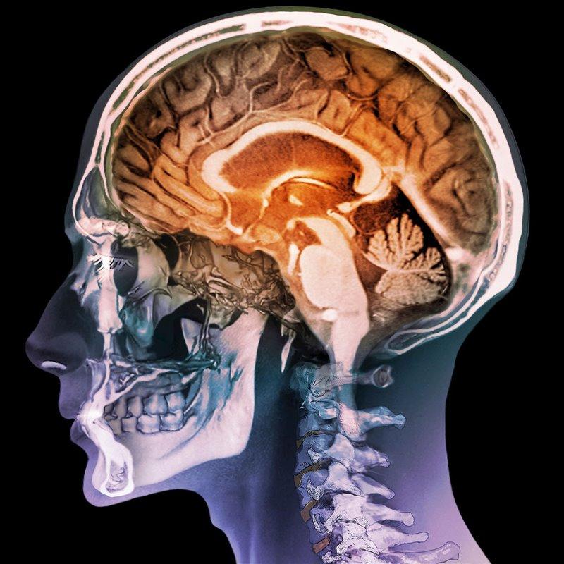 Los ictus o infartos cerebrales son cada vez más frecuentes en los jóvenes