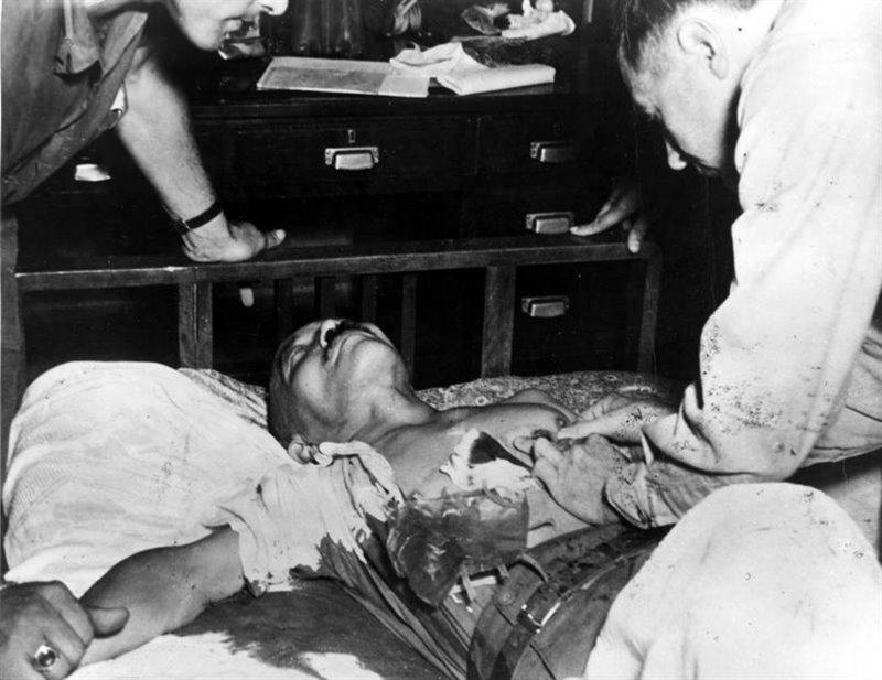 El primer ministro de Japón en 1945, Hideki Tōjō, momentos después de su intento de suicidio.