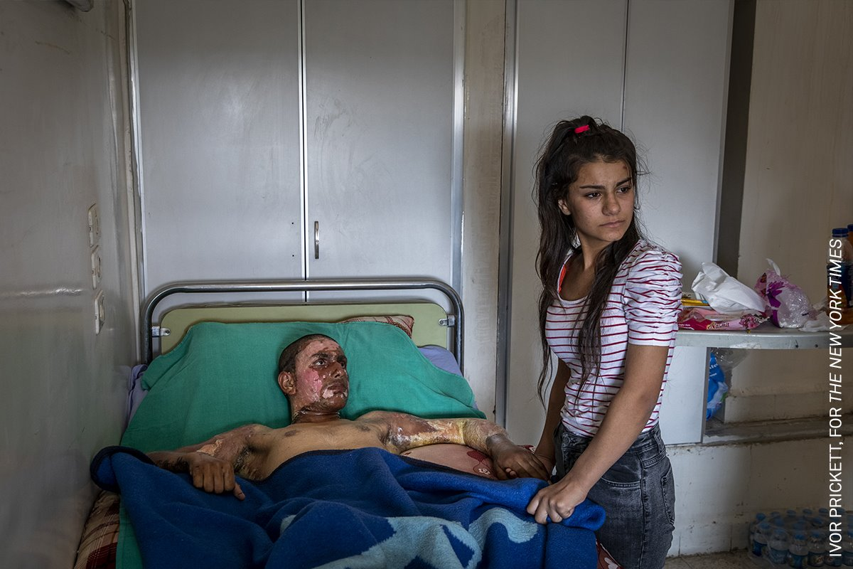 (Injured Kurdish Fighter Receives Hospital Visit) Luchador kurdo herido recibe visita en el hospital
