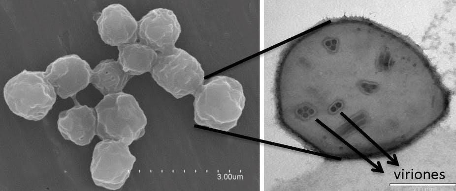 Los Viriones de los baculovirus