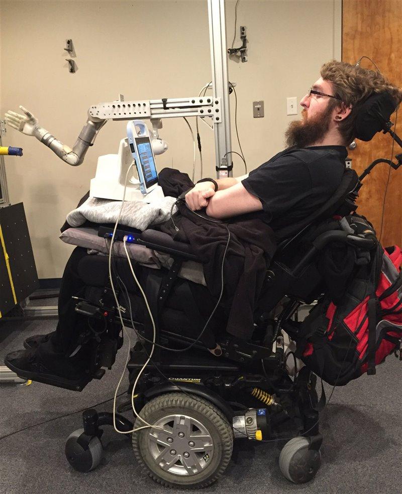 Nathan Copeland, conectado a un brazo robótico