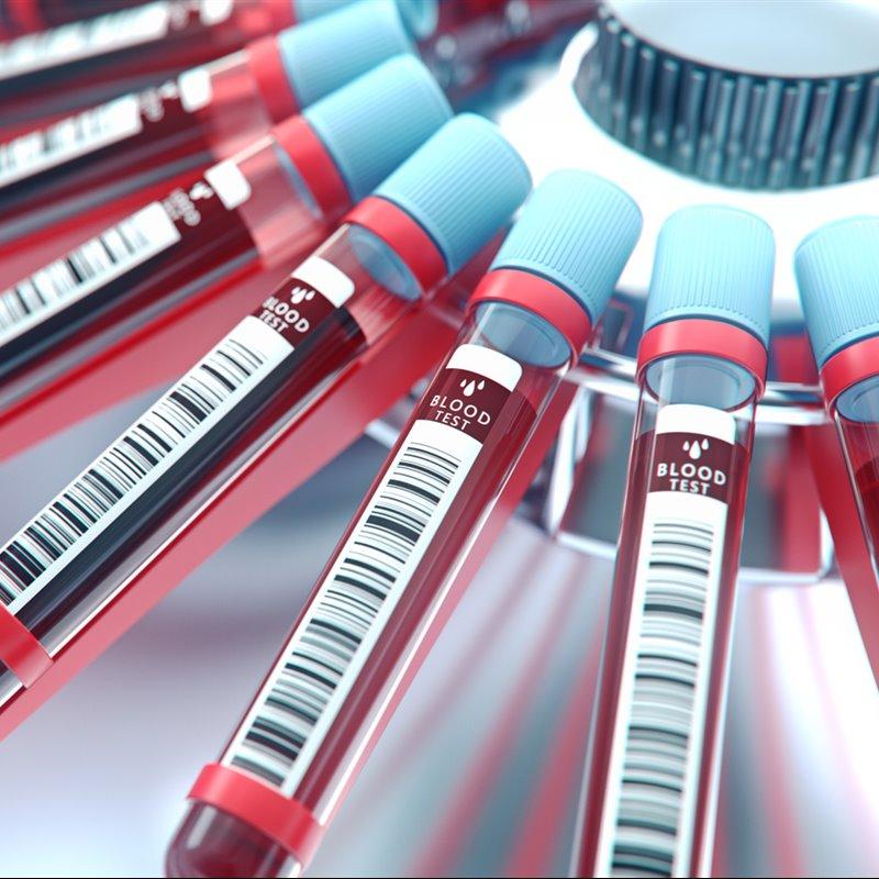 Un análisis de sangre para detectar el cáncer en fases tempranas
