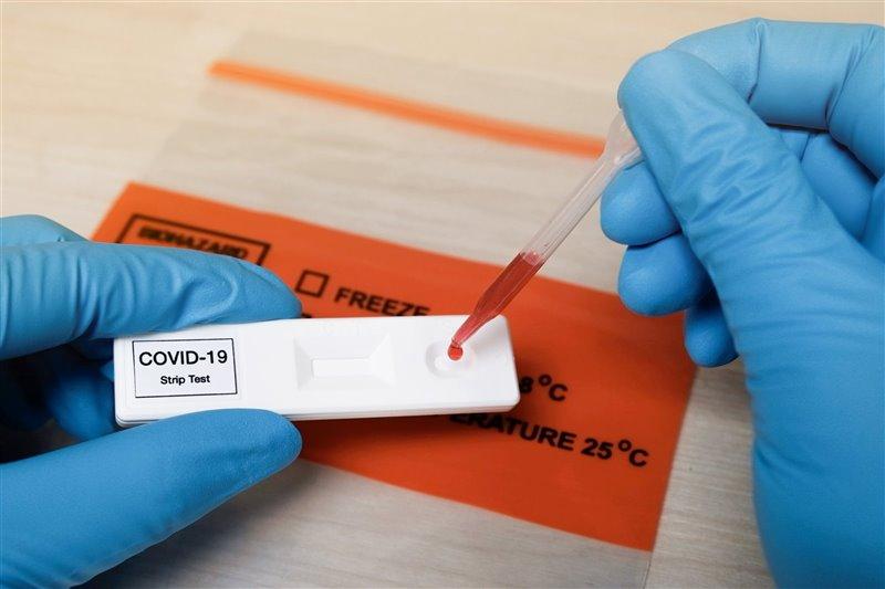 Como en los test rápidos de anticuerpos, el test se trata de láminas rectangulares de plástico de 5 cm que no utiliza una muestra de sangre del dedo, como en otros test.