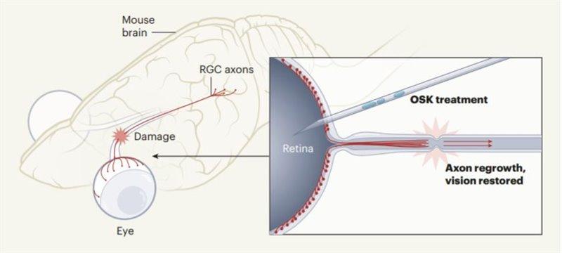 Reparación de axones