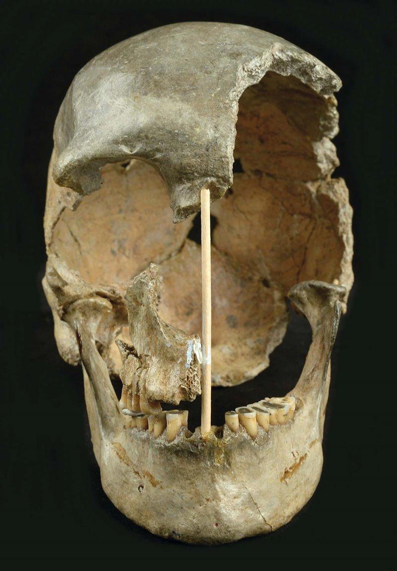Vista frontal del cráneo